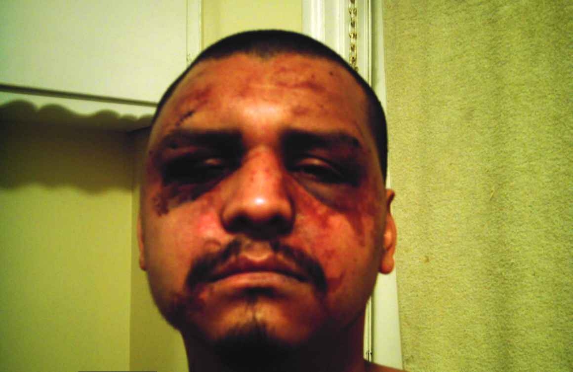 Gabriel Carrillo was beaten by deputies while visiting his brother in Men's Central Jail.